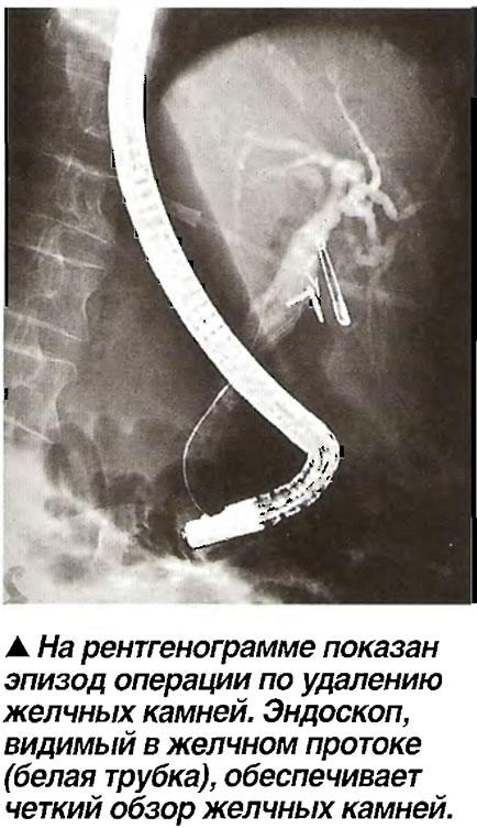 На рентгенограмме показан эпизод операции по удалению желчных камней