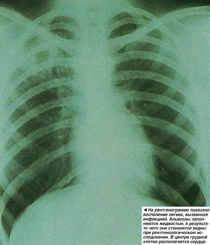 На рентгенограмме показано воспаление легких, вызванное инфекцией