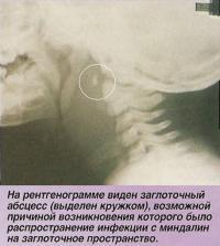 На рентгенограмме виден заглоточный абсцесс