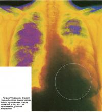 На рентгеновском снимке грудной клетки видна темная масса
