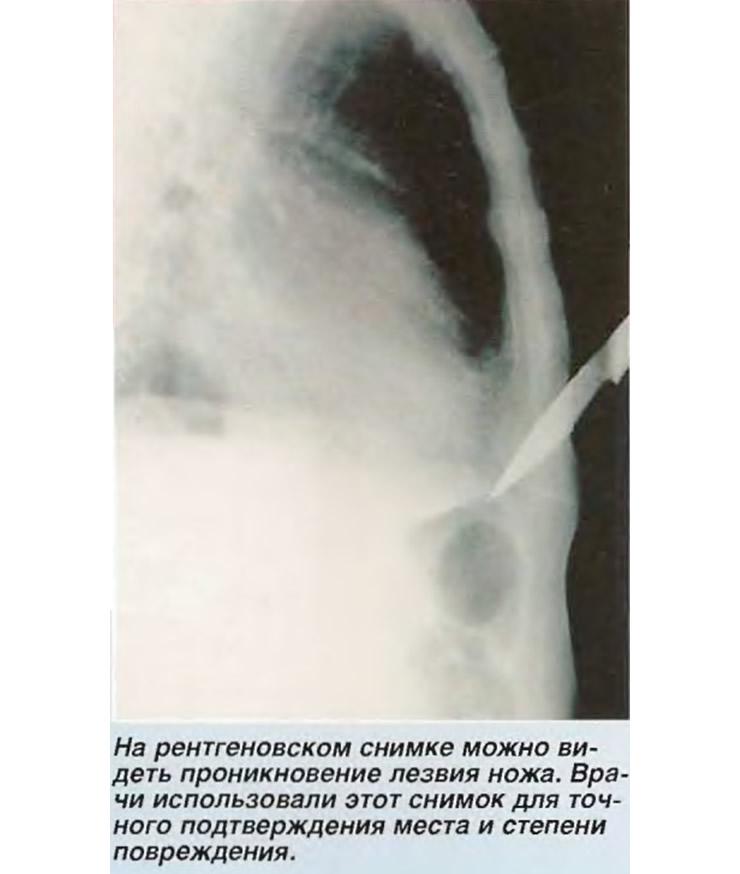 На рентгеновском снимке можно видеть проникновение лезвия ножа