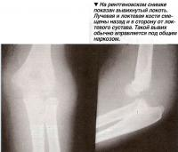 На рентгеновском снимке показан вывихнутый локоть