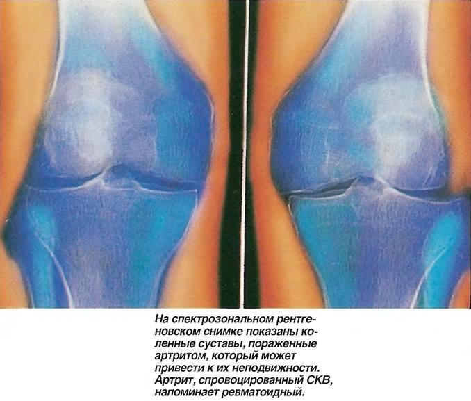 На рентгеновском снимке показаны коленные суставы, пораженные артритом
