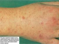 На руке пациента видна сыпь, характерная для менингококкового сепсиса
