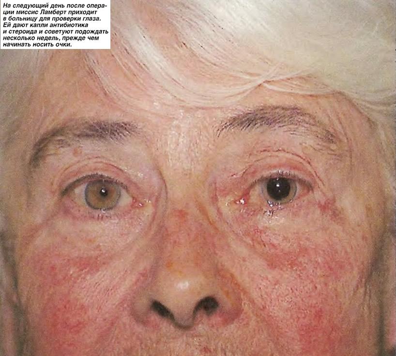 На следующий день после операции миссис Ламберт приходит для проверки глаза