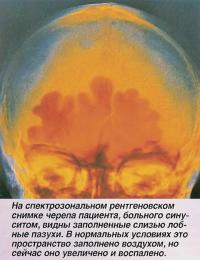 На снимке черепа пациента, больного синуситом, видны заполненные слизью лобные пазухи