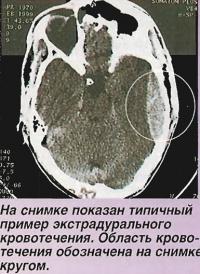 На снимке показан типичный пример экстрадурального кровотечения
