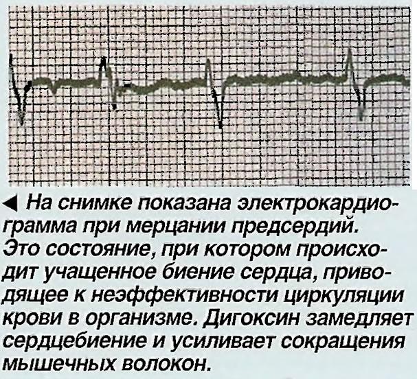 На снимке показана электрокардиограмма при мерцании предсердий