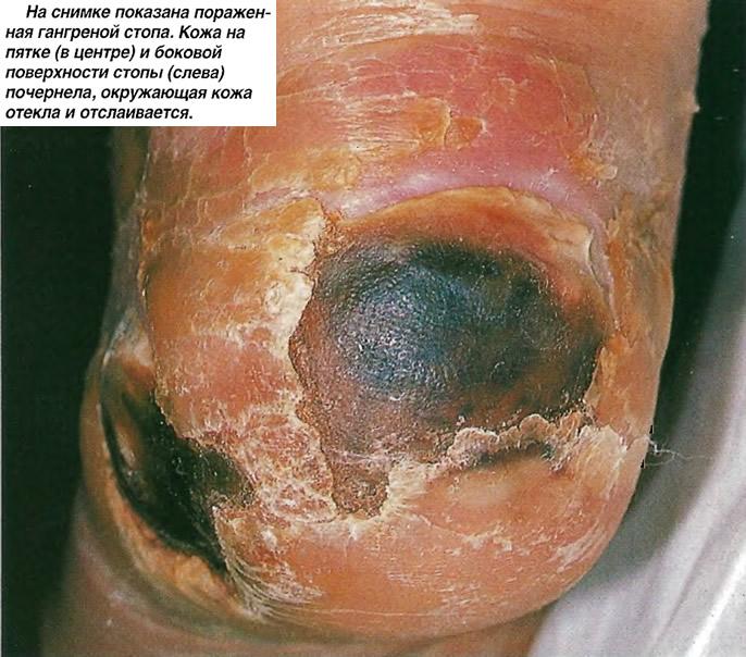 На снимке показана пораженная гангреной стопа