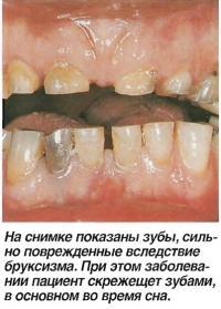 На снимке показаны зубы, сильно поврежденные вследствие бруксизма
