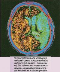 На спектрозональной компьютерной томограмме показана область инфаркта