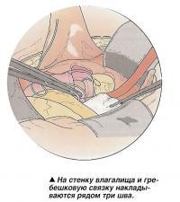 На стенку влагалища и гребешковую связку накладываются рядом три шва