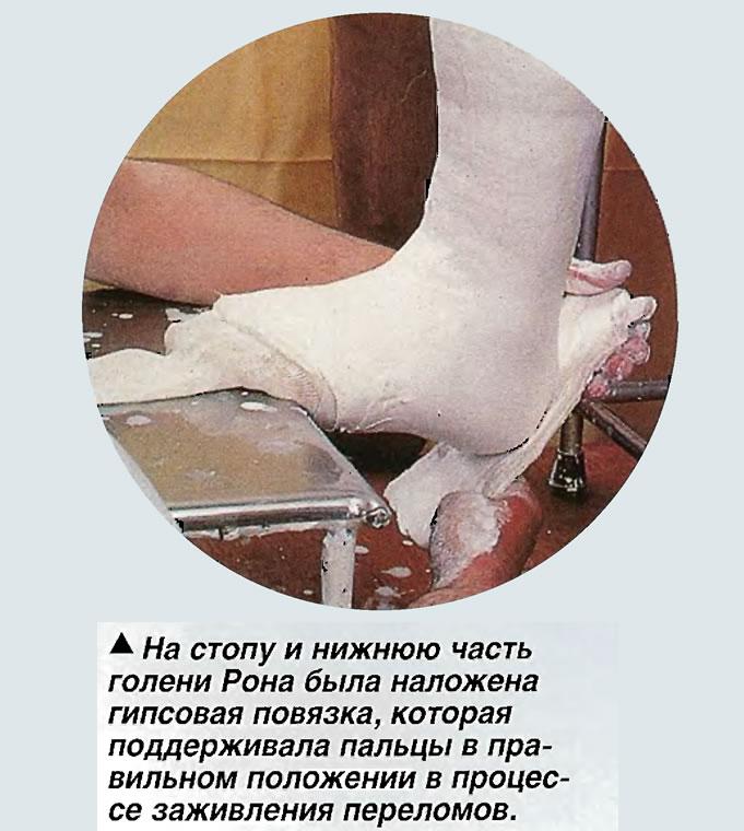 На стопу и нижнюю часть голени Рона была наложена гипсовая повязка