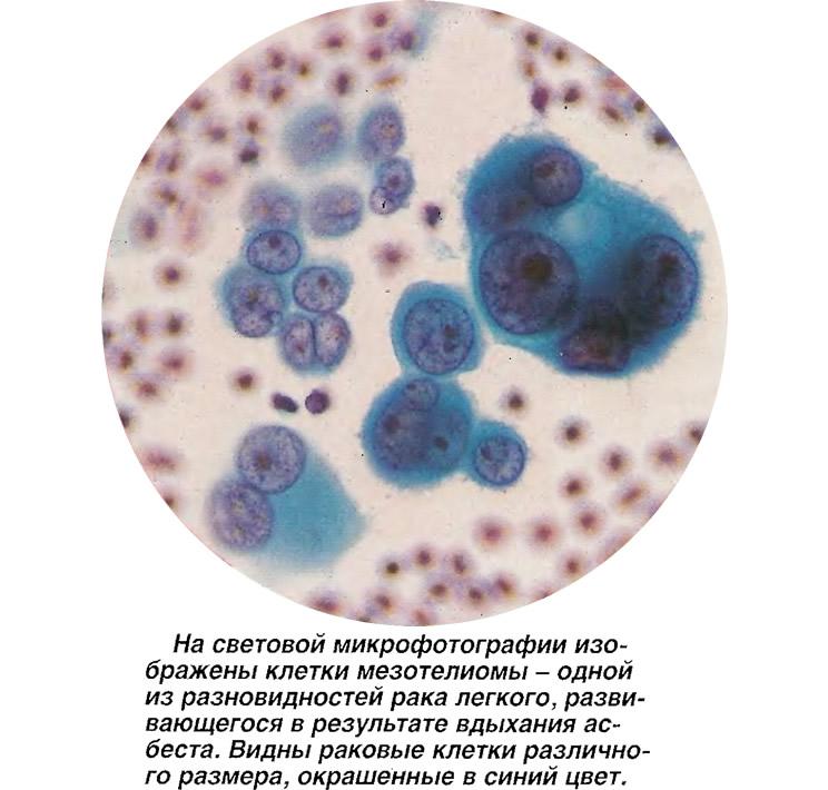 На световой микрофотографии изображены клетки мезотелиомы