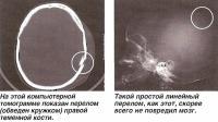 На томограмме показан перелом правой теменной кости