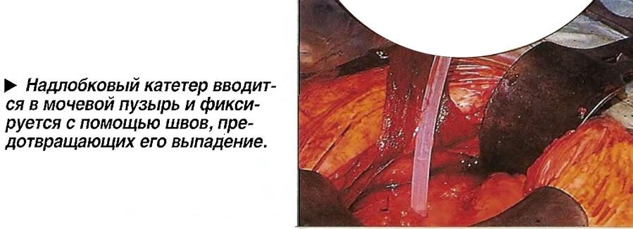 Надлобковый катетер вводится в мочевой пузырь и фиксируется