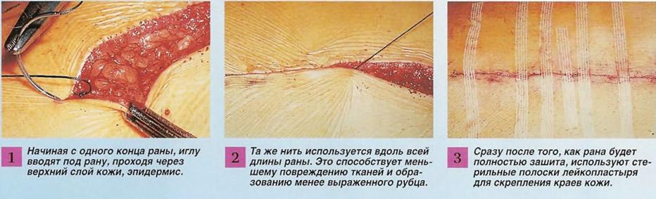 Наложение подкожных швов