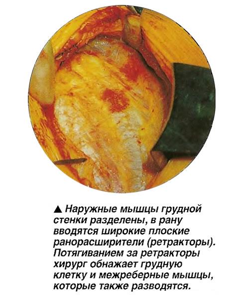 Наружные мышцы грудной стенки разделены, в рану вводятся широкие плоские ранорасширители