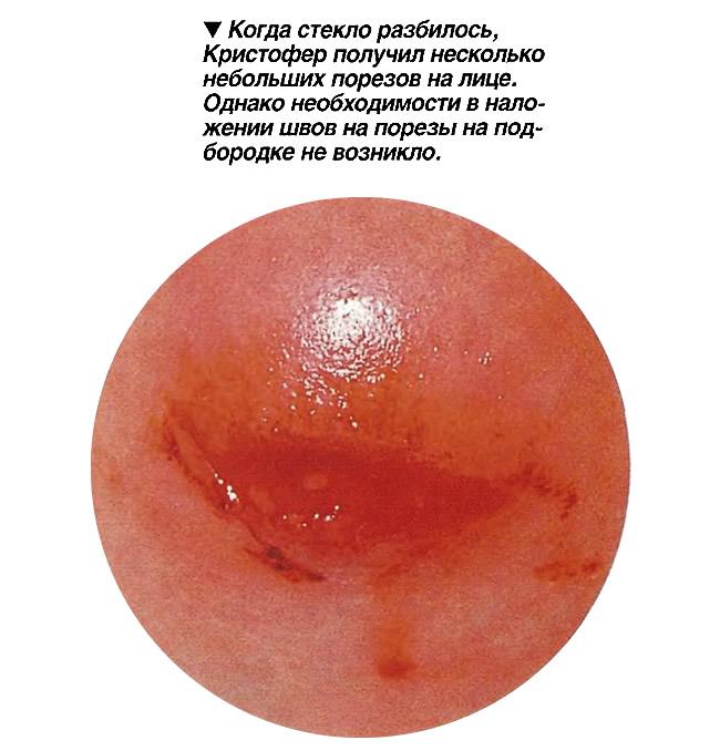 Небольой порез на лице