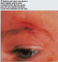 Небольшой порез над бровью Кристофера практически не кровоточил