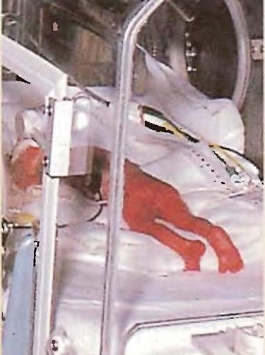 Недоношенные дети содержатся в инкубаторе