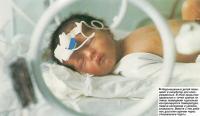 Недоношенных детей помещают в инкубатор для новорожденных