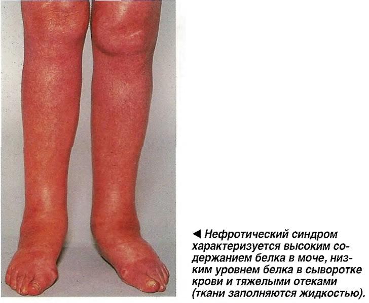 Нефротический синдром характеризуется высоким содержанием белка в моче