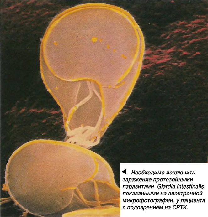 Необходимо исключить заражение протозойными паразитами Giardia intestinalis