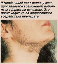 Необычный рост волос у женщин является возможным побочным эффектом даназола