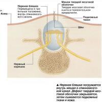 Нервная бляшка погружается внутрь мешка в спинномозговой канал