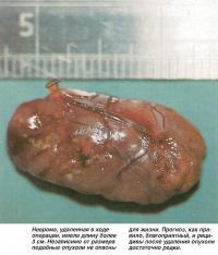 Неврома, удаленная в ходе операции, имела длину более 3 см