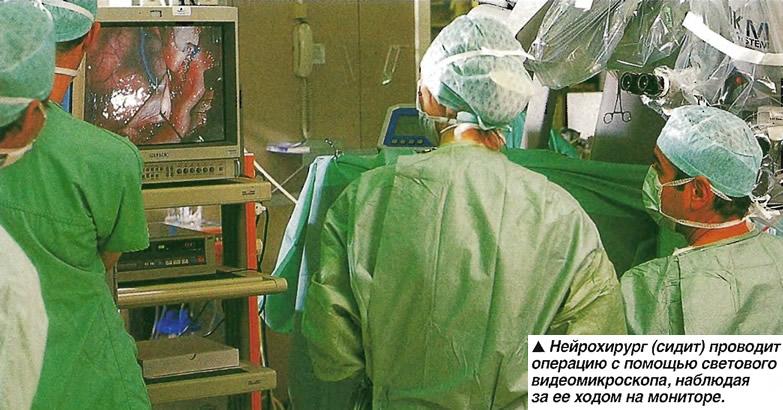 Нейрохирург (сидит) проводит операцию с помощью светового видеомикроскопа