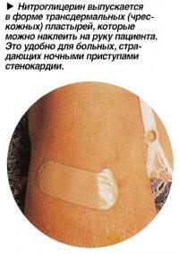 Нитроглицерин выпускается в форме трансдермальных (чрескожных) пластырей