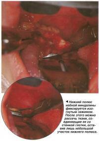 Нижний полюс небной миндалины фиксируется изогнутым зажимом