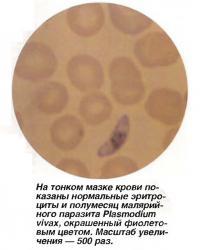 Нормальные эритроциты и полумесяц малярийного паразита Plasmodium vivax