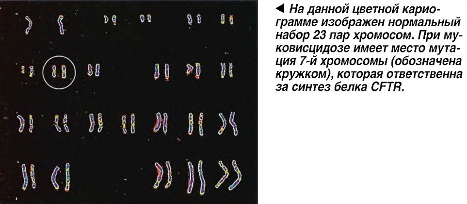 Нормальный набор 23 пар хромосом