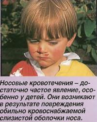 Носовые кровотечения - достаточно частое явление, особенно у детей