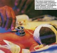 Новорожденным с желтухой может потребоваться лечение в отделении интенсивной терапии