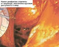 Ножки диафрагмы отделены от пищевода, обеспечена круговая доступность к нему