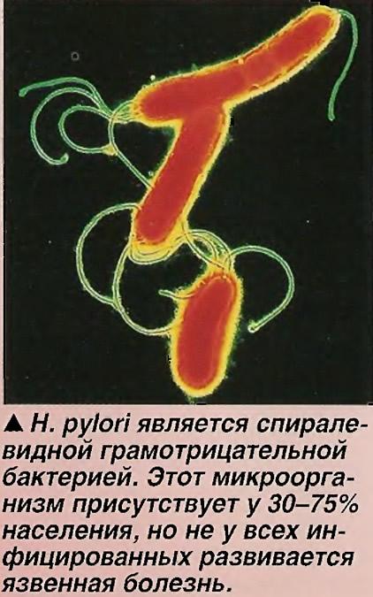 Н.pylori является спиралевидной грамотрицательной бактерией