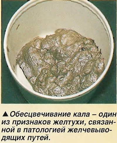 Обесцвечивание кала - один из признаков желтухи
