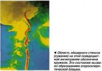 Область обширного стеноза (сужения)