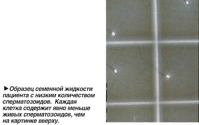 Образец семенной жидкости с низким количеством сперматозоидов