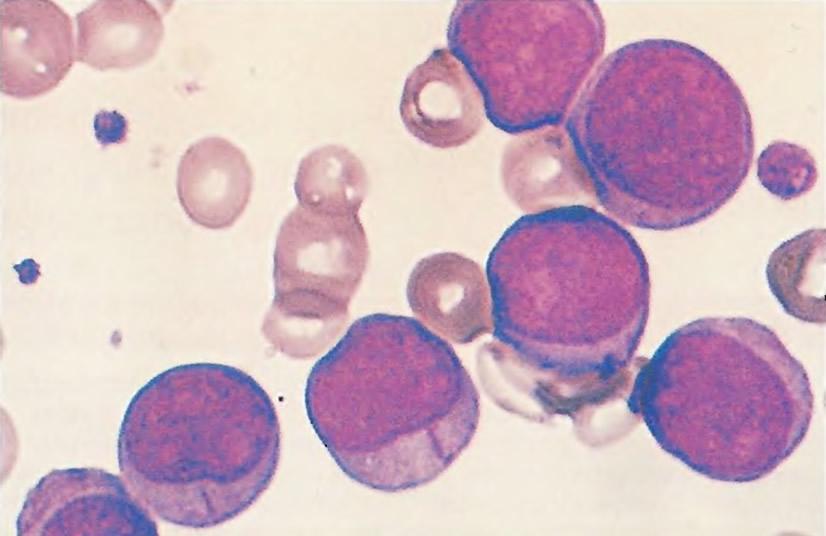 Образец взят у пациента с острым миелобластным лейкозом