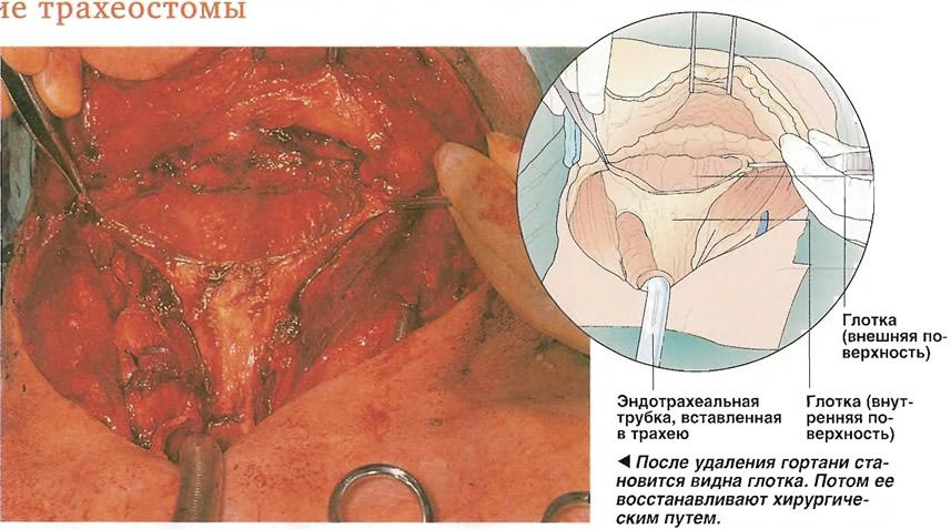 Образование трахеостомы