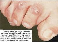 Обширные деструктивные изменения суставов ног