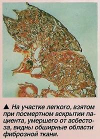 Обширные области фиброзной ткани