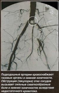 Обструкция подвздошной артерии