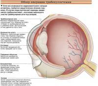 Обзор операции трабекулэктомии
