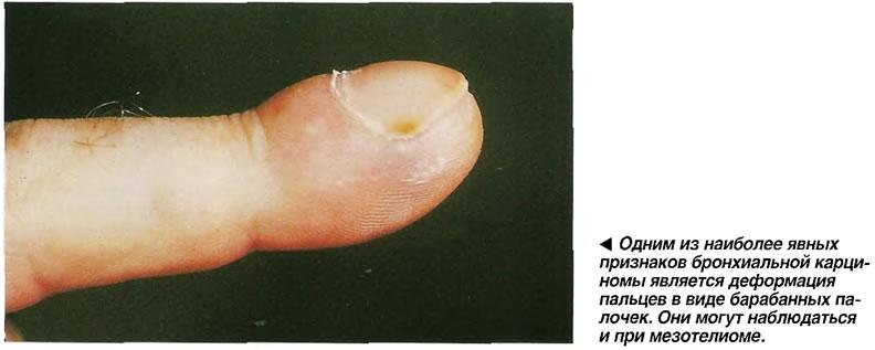 Одним из наиболее явных признаков бронхиальной карциномы является деформация пальцев